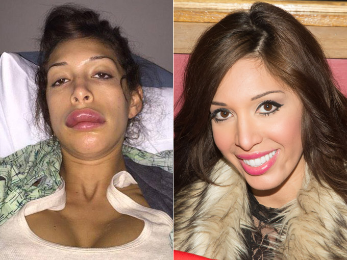 farrah abraham plastic surgery gone wrong