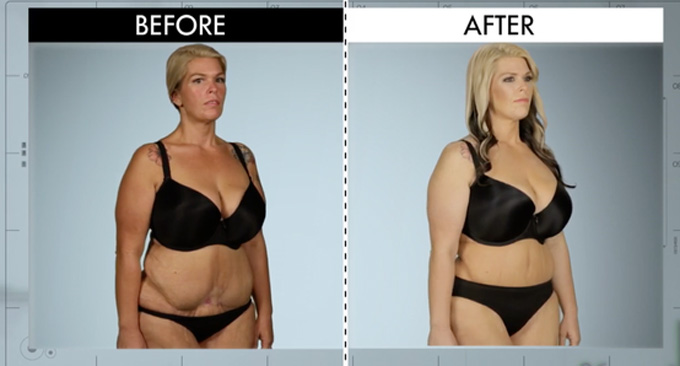 botched before/after
