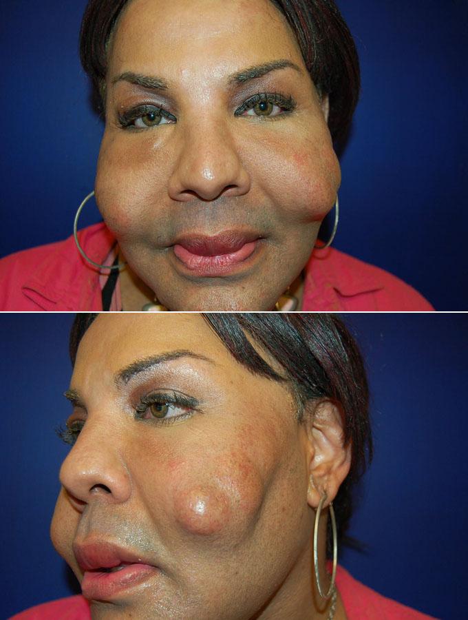botched plastic surgery
