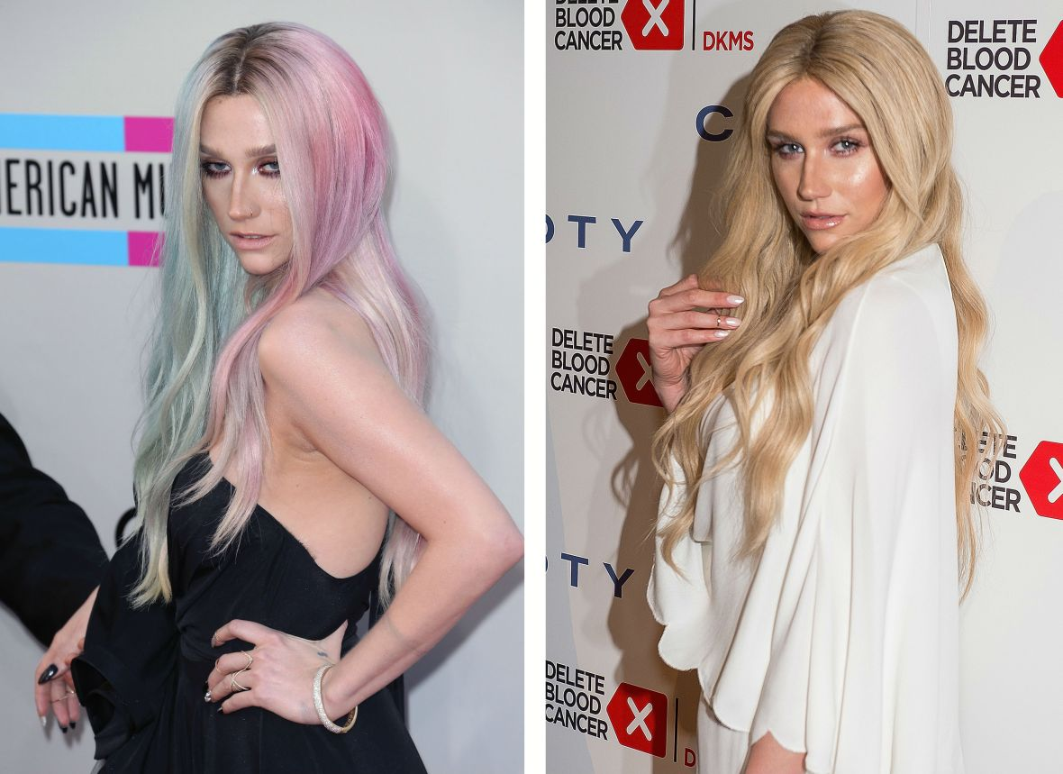 kesha before and after