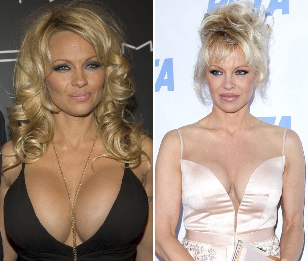 Breast Implants Before After Pictures - RealSelf]