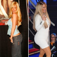 Celebrity Butt Implants Before And After Pics Of Stars