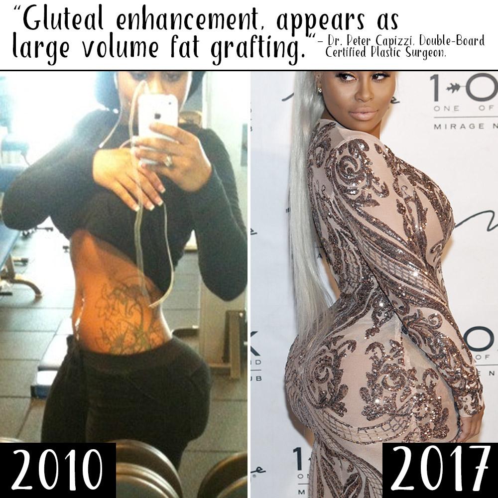 Fat ass ts