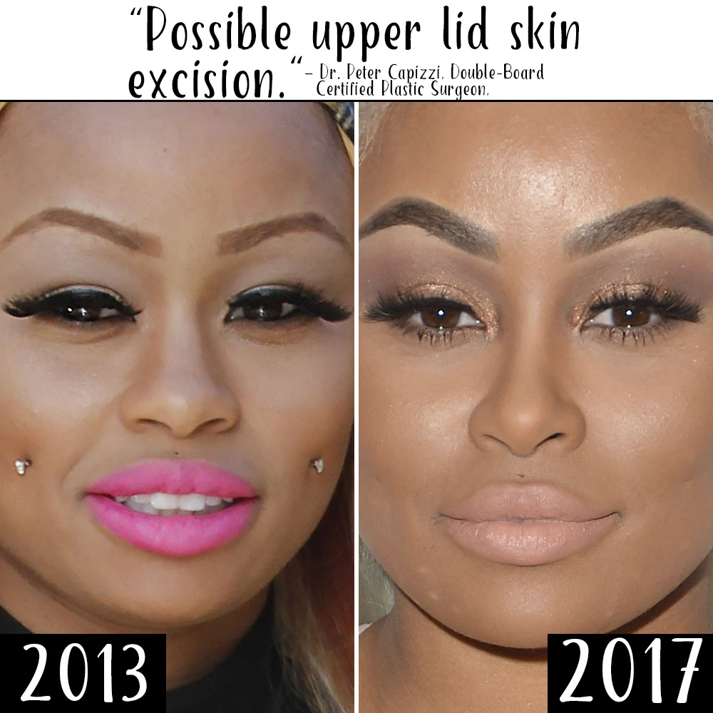 Plastic Surgery? See Blac Chyna's Body Change Over Time