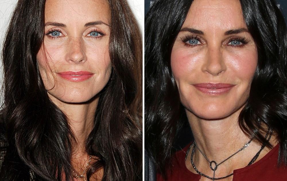 Celebrities With Plastic Surgery Heidi Montag Courteney