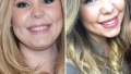 kailyn-lowry-plastic-surgery-face