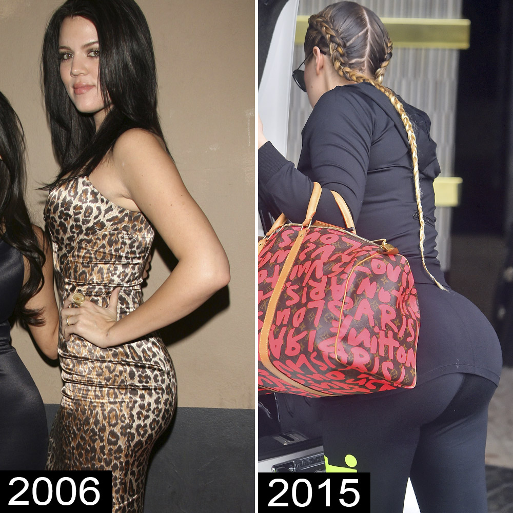 Celebs With Butt Implants