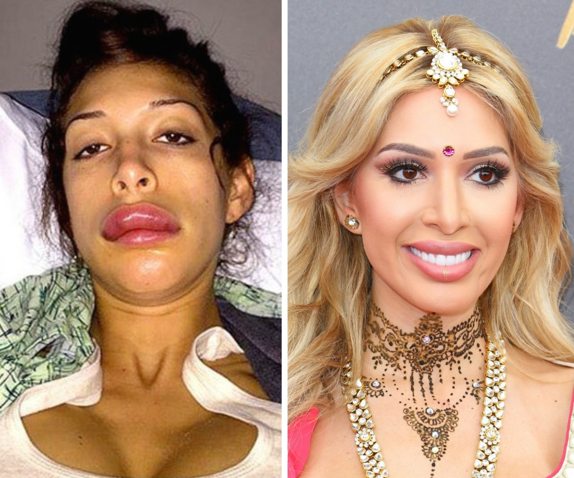 farrah abraham lips before and after