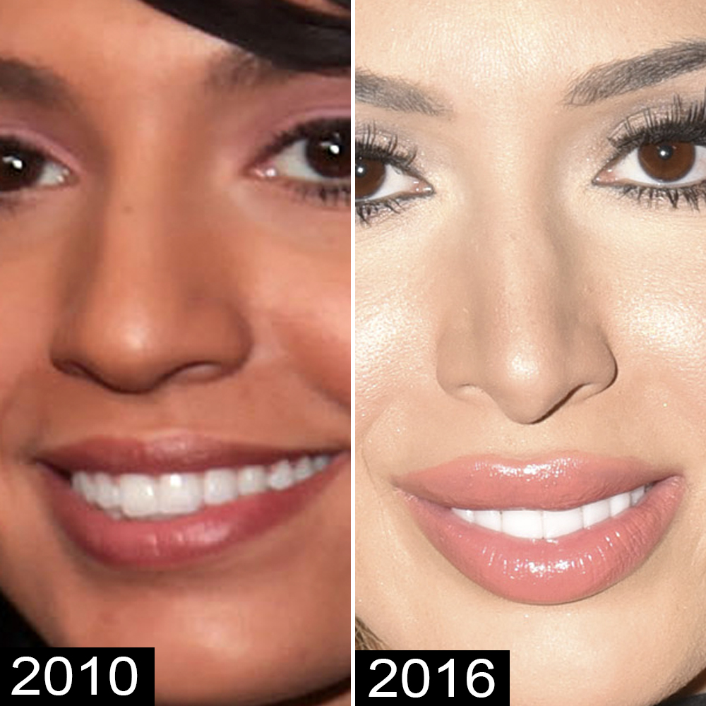 Farrah Abraham Gets More Plastic Surgery — to Tighten Her