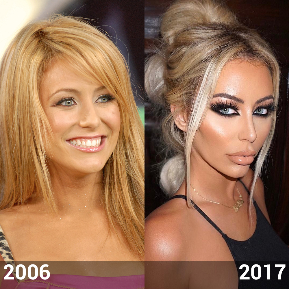 aubrey oday before plastic surgery