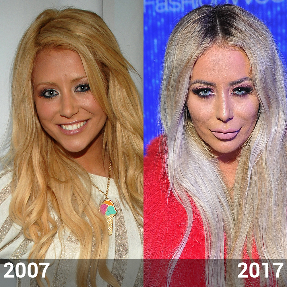aubrey o day before and after did the star have plastic surgery