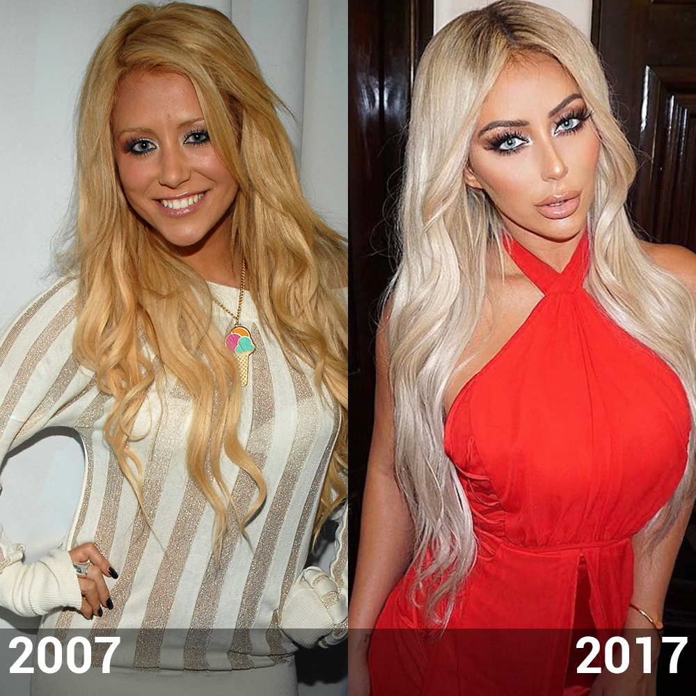 Aubrey Oday Before And After Did The Star Have Plastic Surgery