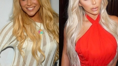 aubrey-oday-before-plastic-surgery-overview