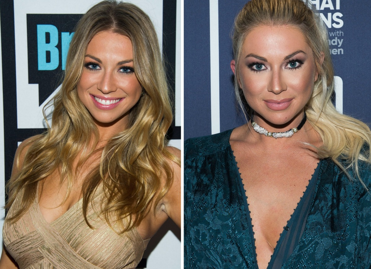 stassi schroeder breast reduction