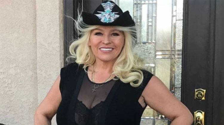 Beth Chapman Bravely Shows Off Her Cancer Surgery Scars-2654