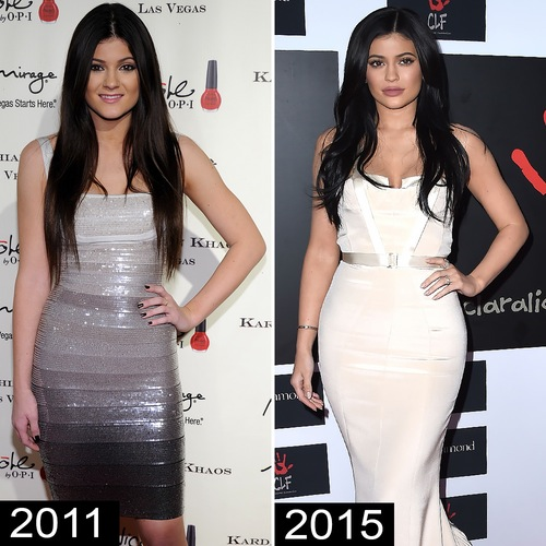 3108741befdbd Did Kylie Jenner Get a Boob Job  See Before and After Pics of the Star
