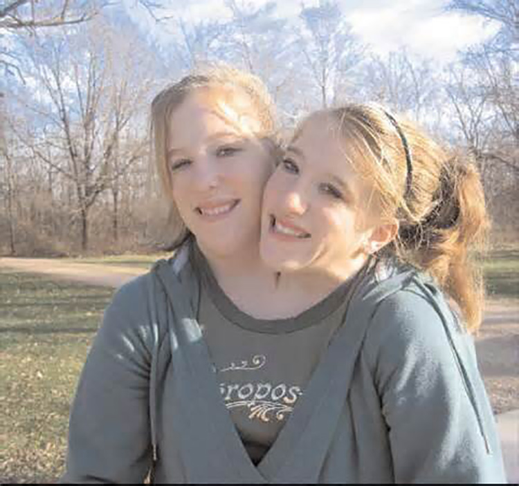 abby and brittany