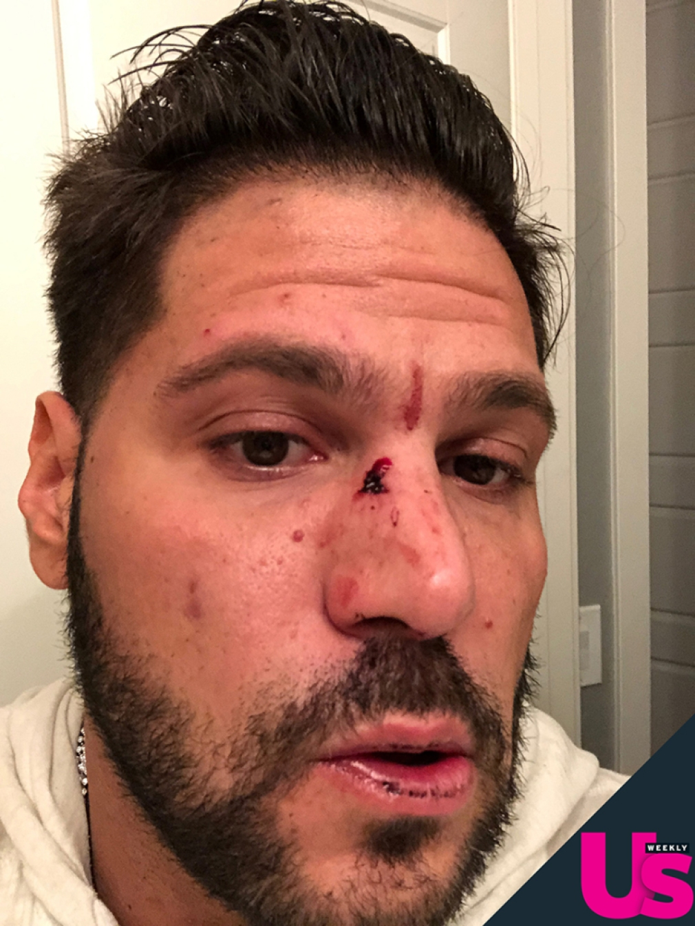 Ronnie Ortiz-Magro Says Jen Harley Allegedly Threw An Ash Tray At His Face Leaving Him Bloody And Bruised