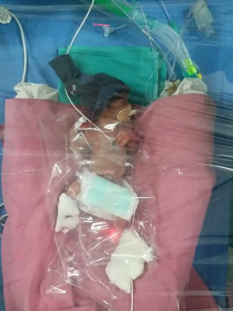 Premature Baby in Hospital