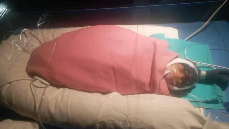 Premature Baby Wrapped Up in Blanket