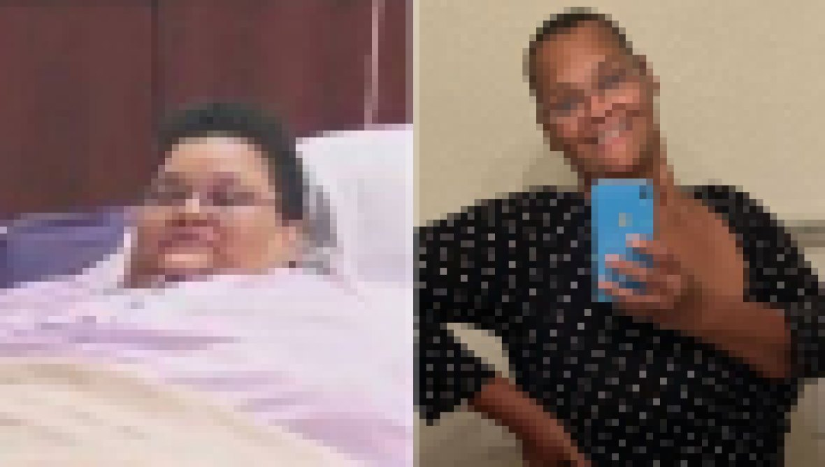 My 600-lb Life' Success Stories-Milla Clark