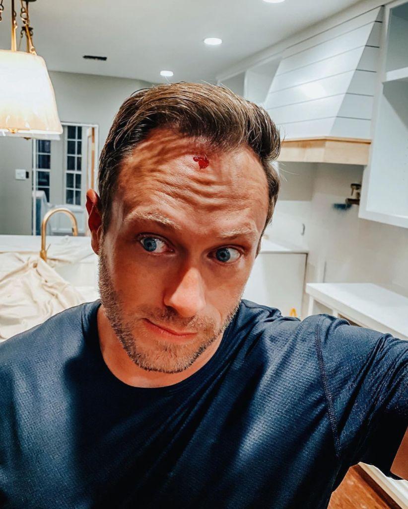 Adam Busby Head Injury