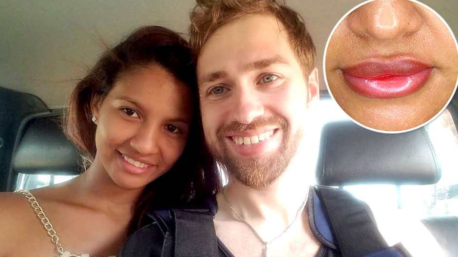 90 day fiance karine undergoes cosmetic procedure following paul drama