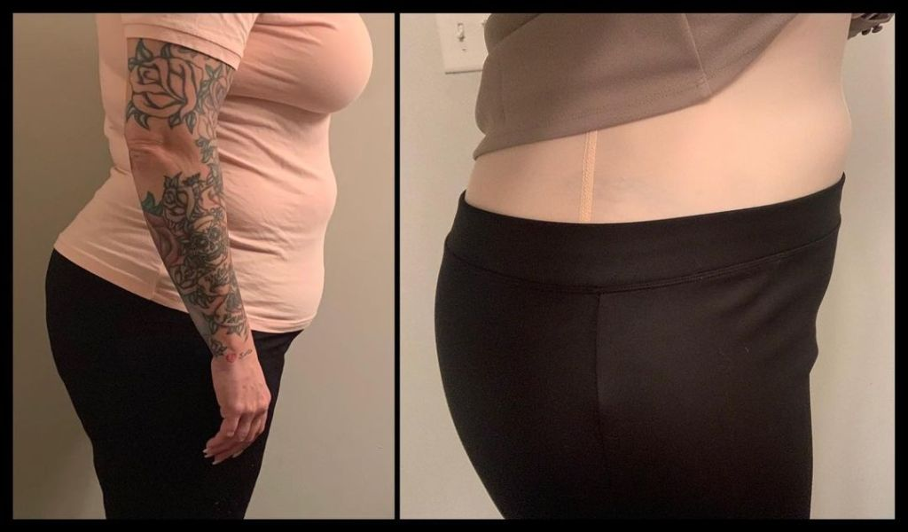 90 day fiance rebecca weight loss laser lipo before and after