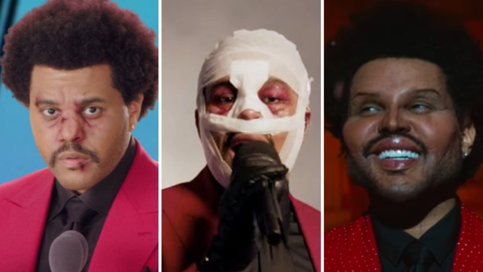 The Weeknd Plastic Surgery (1)