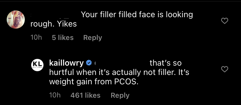 Kailyn Lowry Reacts to Troll Who Says She Has 'Fillers'