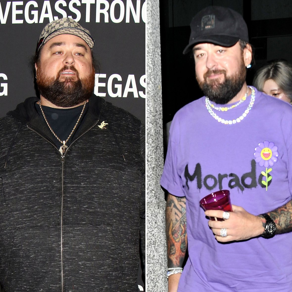 Pawn Stars Chumlee Reveals 160-Pound Weight Loss After Gastric Surgery